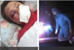 Жестоко избитой Чорновол предстоит несколько операций – СМИ