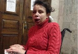 СМИ сообщают о жестоком избиении Татьяны Чорновил в Борисполе