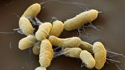 Почему люди до сих пор умирают от чумы?