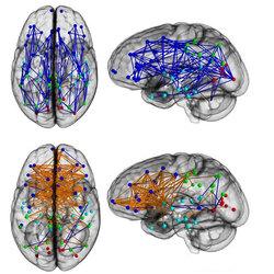 Мозг женщин и мужчин имеет разные нейронные связи