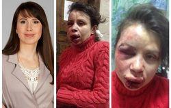 РФ не выдаст Киеву титушку, избившего Татьяну Черновол – он стал «беженцем»