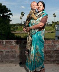 Из-за редкого заболевания индийский мальчик стал похож на старика