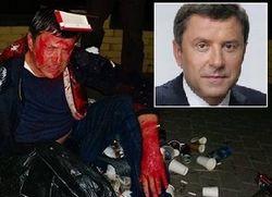Облитого краской депутата Пилипишина бросили в груду мусора
