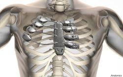 В Австралии будут печатать органы на 3D-принтере