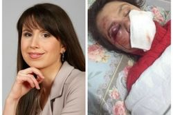 Генпрокуратура Украины: журналистку Т. Чорновол избили хулиганы