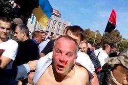 Избиение Шуфрича в Одессе называют провокацией