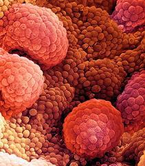 Бессонница грозит мужчинам раком простаты – ученые