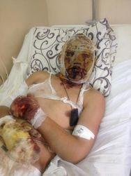 Мы знали, куда и зачем идем – признания танкиста РФ, раненого под Дебальцево