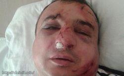 В Киеве избили луганского сепаратиста Клинчаева