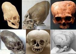 Археологи нашли продолговатые черепа людей в Антарктиде