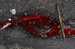 Минздрав: за время АТО погибло около 500 мирных граждан