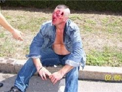 Одессит, которого лично избил Игорь Марков в 2007 году, стал инвалидом