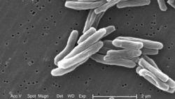 Предки человека болели туберкулезом и 70 тысяч лет назад – исследование