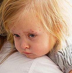 Украина: на Ривненщине свирепствует корь, более 500 заболевших - причины