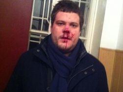Украина: избитый нардеп Ильенко рассказал о своем видении мотивов нападения