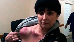 В Киеве в подъезде ее дома жестоко избили журналистку Дорожного контроля