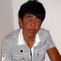 В Алматы сделали операцию парню с лицом старика
