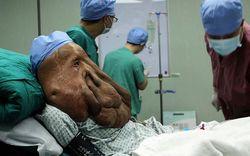 В Китае человеку-слону удалили огромную опухоль на лице