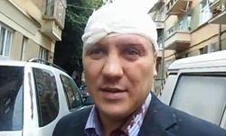 Избит бывший лидер фракции «Свободы» в Черновицком облсовете