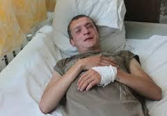 Одного из защитников Гостиного двора жестко избили в Киеве – причины