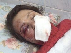 Видео с регистратора пролило свет на обстоятельства избиения журналистки Чорновил – оппозиция