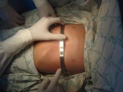 Медики Узбекистана начали делать уникальные операции детям с врожденной болезнью