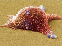 Впервые ученые проследили, как развивается рак кожи