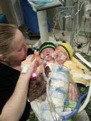 Младенцы с двумя головами