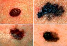 Прорыв в медицине: найдено средство против меланомы – ученые