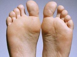 По Дарвину: Ноги человека до сих пор приспособлены для лазания по деревьям