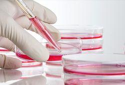 Медицина Израиля: при наличии ракового гена - простату нужно удалить
