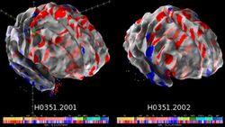 В Интернете выложен первый в мире атлас человеческого мозга