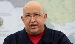 Экстренная госпитализация Чавеса оказалась «уткой»