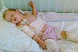 В детдоме Крыма малыша обварили кипятком