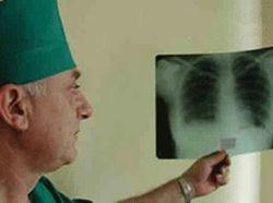 В Душанбе открылся противотуберкулезный центр при содействии США