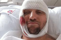 Лидер анархистов Украины избит до полусмерти