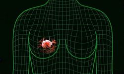 Ученые США открыли новый РНК-маркер выживаемости больных раком