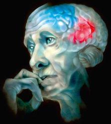 Ученые: ген болезни Альцгеймера у 1/3 молодежи Земли