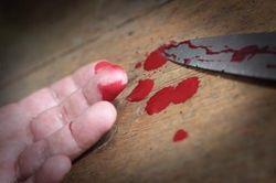 В комнате охраны супермаркета в Кривом Роге покупатель сам себя порезал