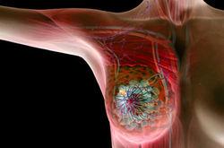 Медицина Израиля: специалисты об эффективных методах лечения рака молочной железы