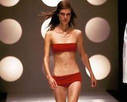 Моделей для шоу-бизнеса агентства ищут в… клиниках по лечению анорексии