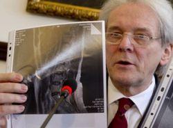 Скандалом закончился визит немецких врачей к Тимошенко - СМИ