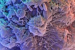 Ученые США научились отключать клетки, распознающие холод