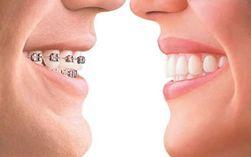 Зубные брекеты таят в себе опасности – выводы специалистов