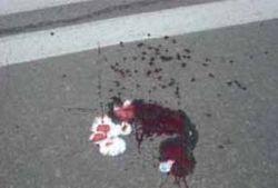 Теракт или случайность: в Москве картонная коробка взорвалась в руках у дворника