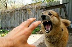 В Красноярском крае двухлетняя девочка погибла от укусов собаки