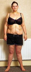 Похудевшая на 165 кг девушка умирает от анорексии