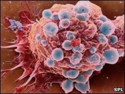 Инвесторам: ученые научились влиять на старение раковых клеток