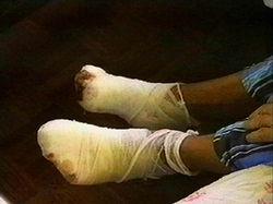 Иностранцы попали в больницу в Черниговской области