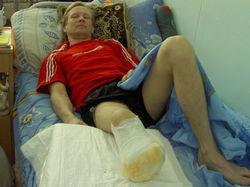 Ради чего мужчина отпилил себе ногу?